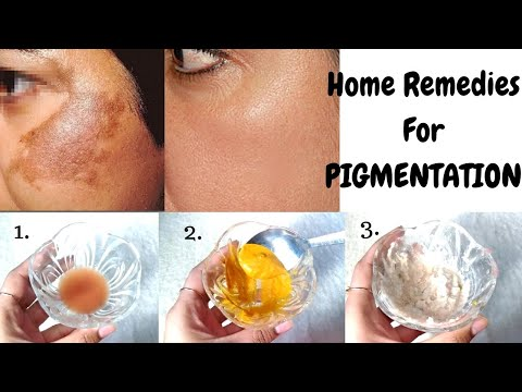 How To Treat Pigmentation In Just 10 Days   Top 3 Home Remedies To Cure Skin Pigmentation & Scars