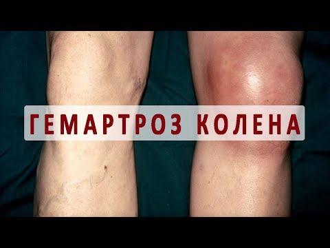 Что нужно знать о гемартрозе коленного сустава