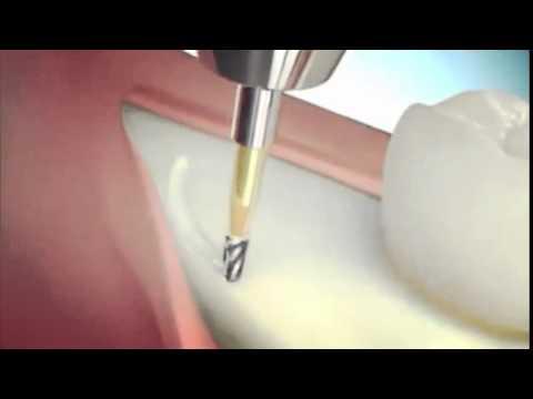 Cerrahi 20lik diş çekimi nasıl yapılır. Diş hekimi Hamza Keskin