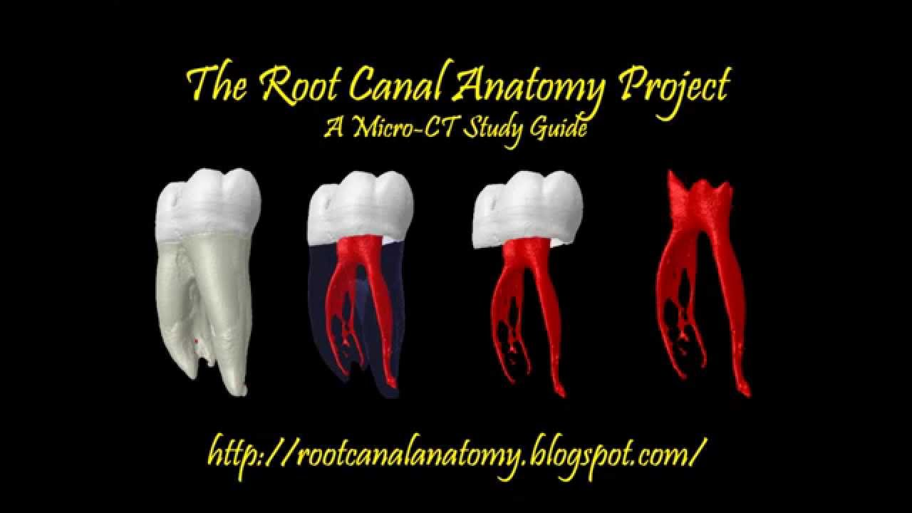 Mandibular First Premolar Two Root Canals Prof Marco Versiani