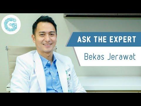 Kebiasaan Tanpa Sadar Penyebab Jerawat #acne1 | dr. Ema Surya P.