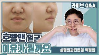 윤곽수술 한적도 없는데 코 옆에 볼살때문에 팔자주름처럼…