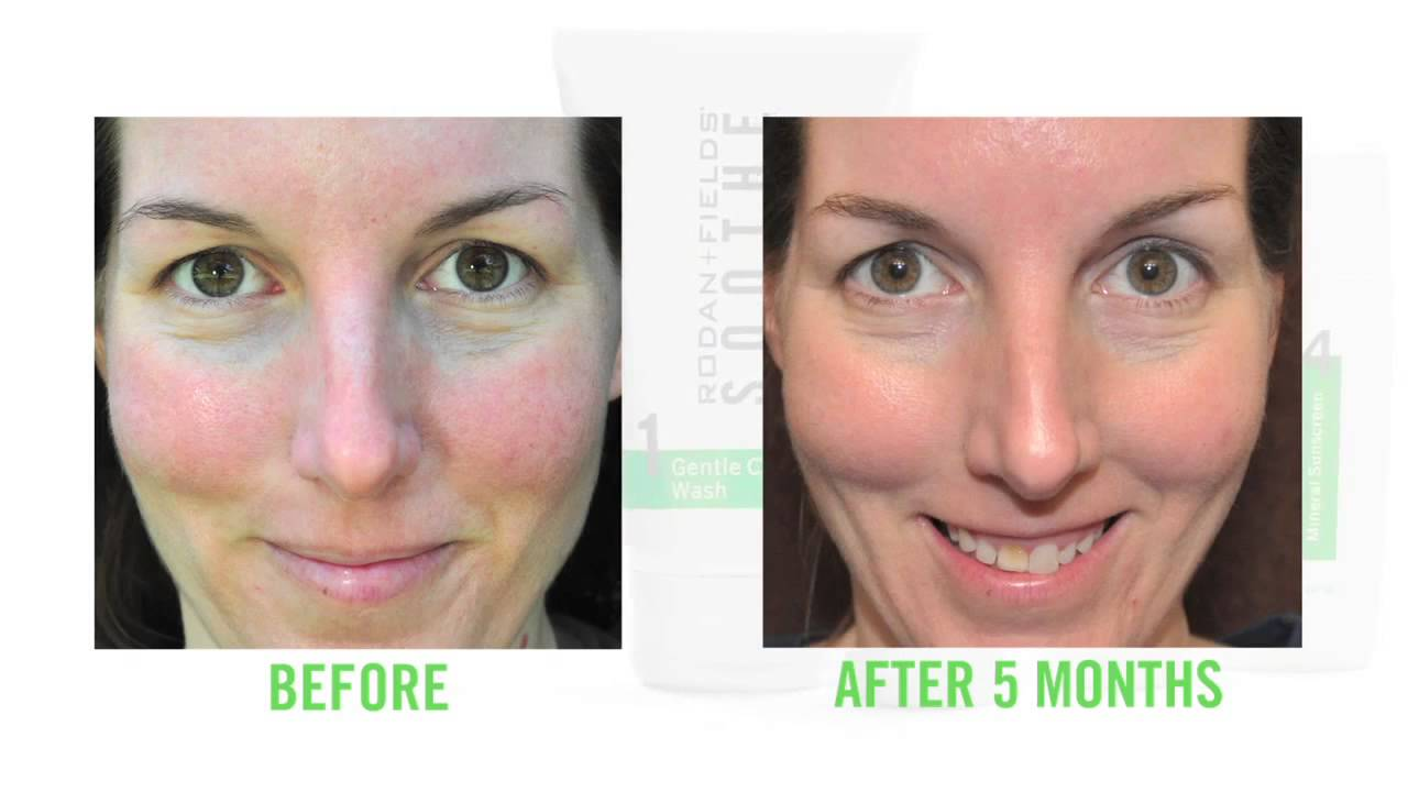 Ipl Rosacea Treatment Before And After 10 Years The Little Things She Needs Ninove Lightgrey Black Tsn0001308c2681 Abu 38 Relief Serum Reviews Consumer Reports My Web Page Homepage What Cream Do You Use For Homemade