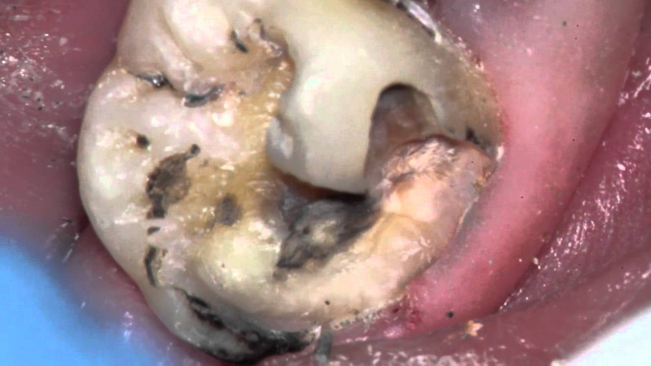 Monster cavity under filling can tooth be saved youtube solutioingenieria Choice Image