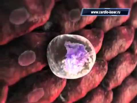 Атеросклероз - причины, симптомы, диагностика и лечение