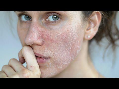 DRY SKIN: 3 Best Ingredients For Dry Cracked Skin