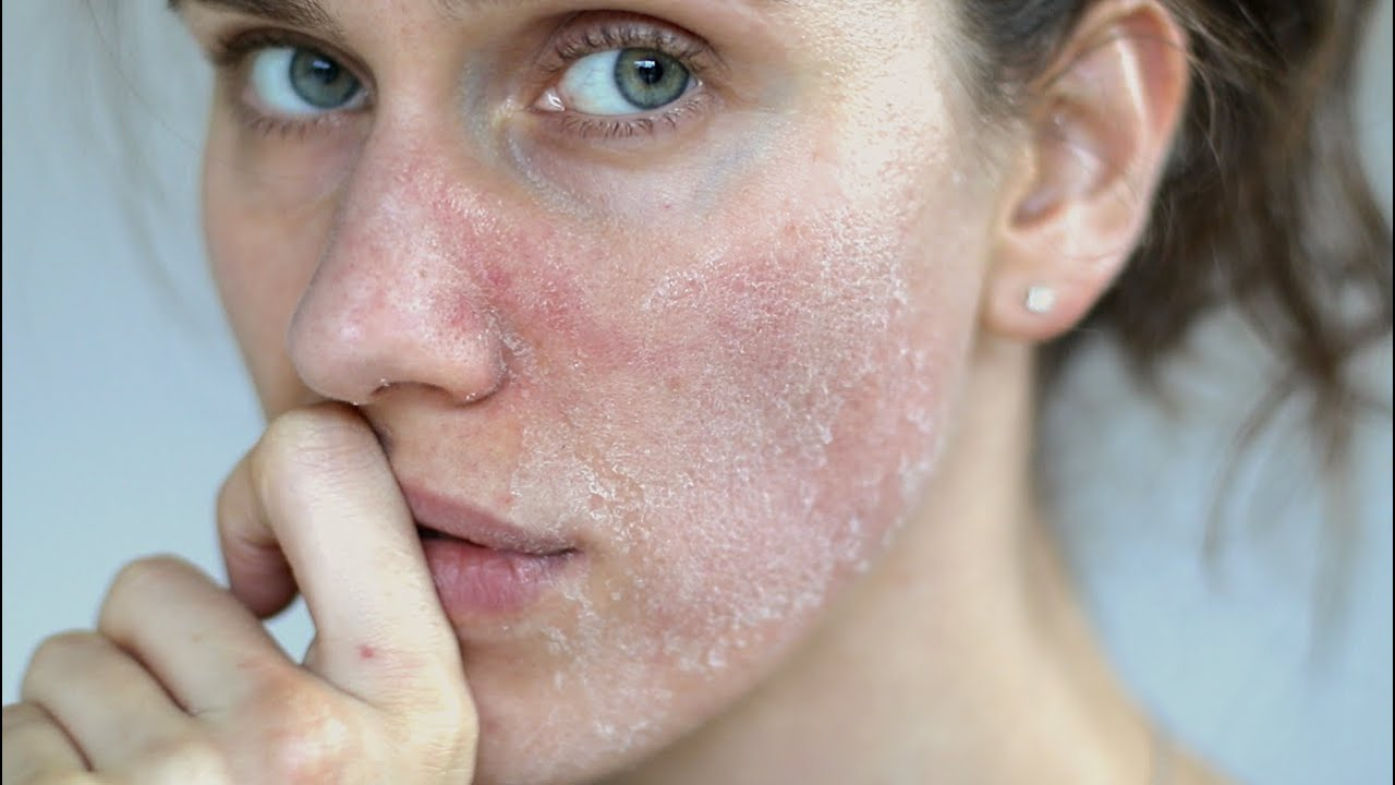 Cracked Skin » How to Prevent And Treat Dry Skin