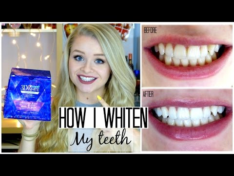 How I Whitened My Teeth! | Sophdoesnails