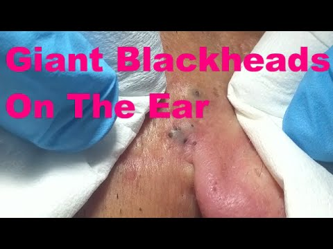 Giant Blackheads On The Ear - Part I -