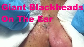 Repeat youtube video Giant Blackheads On The Ear - Part I -