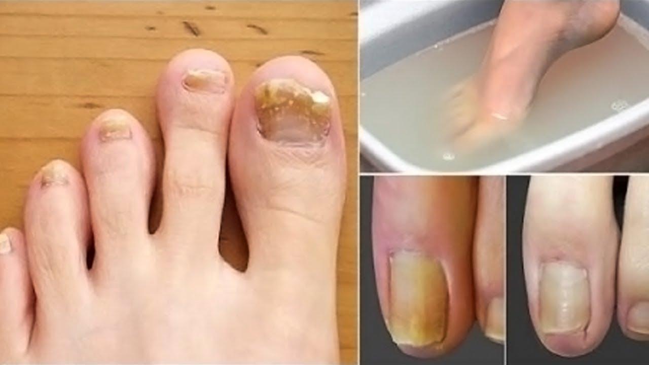 Как избавиться от грибка ногтей и стоп