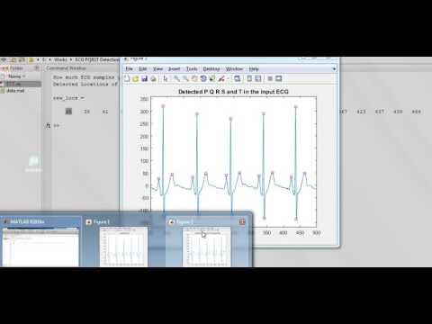 ECG PQRST Detection Matlab Code - YouTube