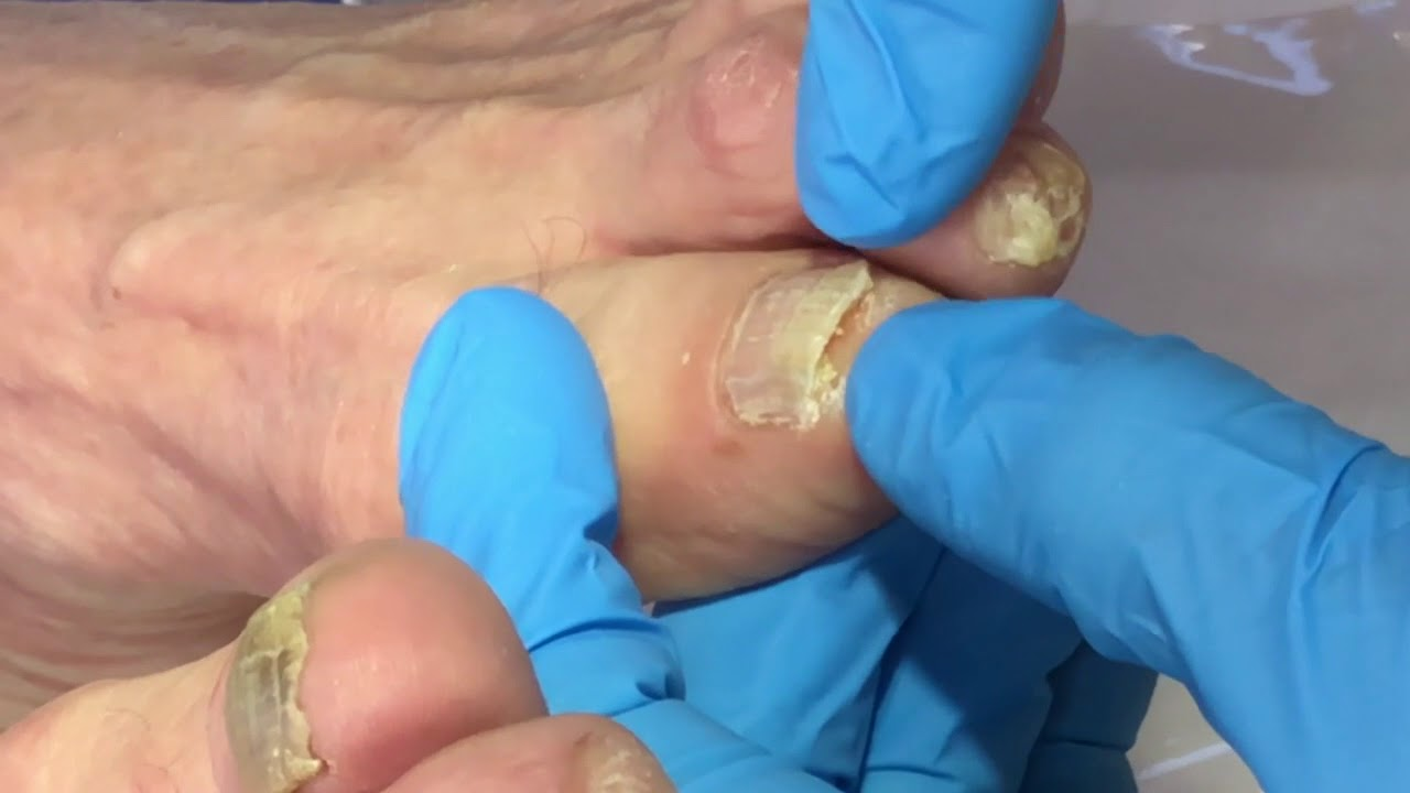 reducing fungal nails with electric podiatry file - YouTube