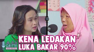 Jakarta, tvOnenews.com - Cara Atasi Luka Bakar Akibat Kena Knalpot yang Paling Aman - Hidup Sehat | .