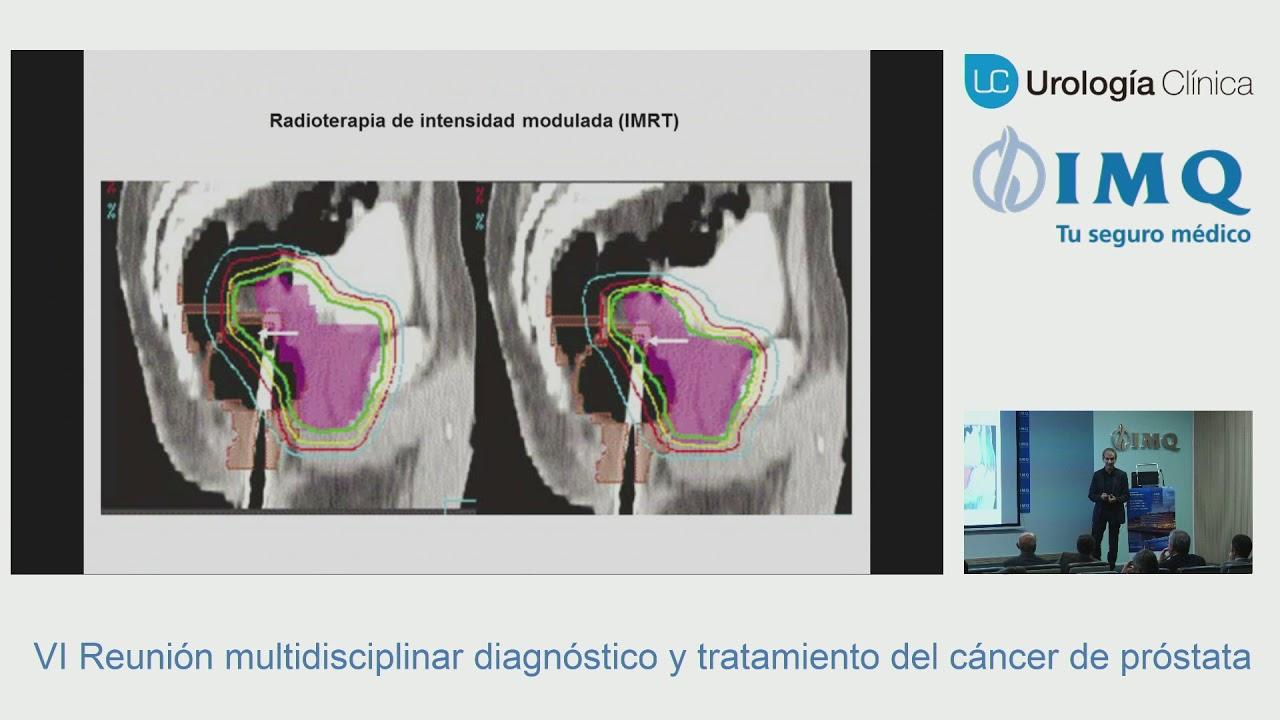radioterapia de próstata y cirugía de vesícula biliar