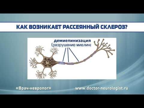Рассеянный склероз: причины возникновения, клинические признаки