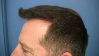 Hair Transplant Procedure - Dr Hasson - 5400 Grafts