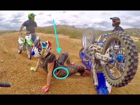 Girl broke her hip on dirt bike!!
