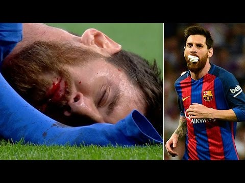 Watch Lionel Messi Take an ELBOW to the Face!