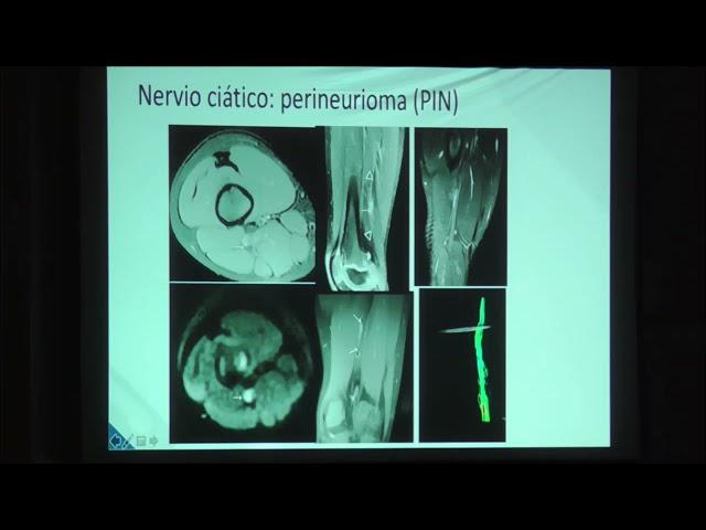 Neurografía de miembros inferiores. Claudia Cejas