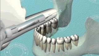 Técnica indirecta en el bloqueo regional mandibular