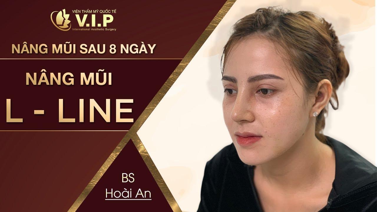 Kết quả NÂNG MŨI L LINE CAO TÂY CHO NỮ tại thẩm mỹ quốc tế VIP
