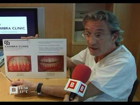 BTV Infodia Cambra Clinic Problemas de los piercings bucales 270309