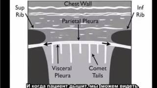 Yльтразвуковое исследование с целью выявления пневмоторакса на конкретном примере