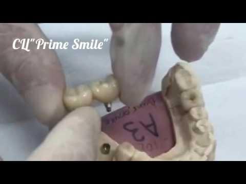 Зубные коронки -