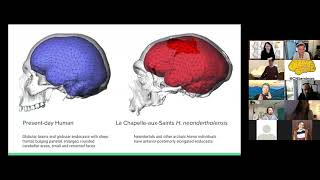 Neuroccino 22nd March 2021 - Neurodegeneration spread and the evolution of modern human brain shape