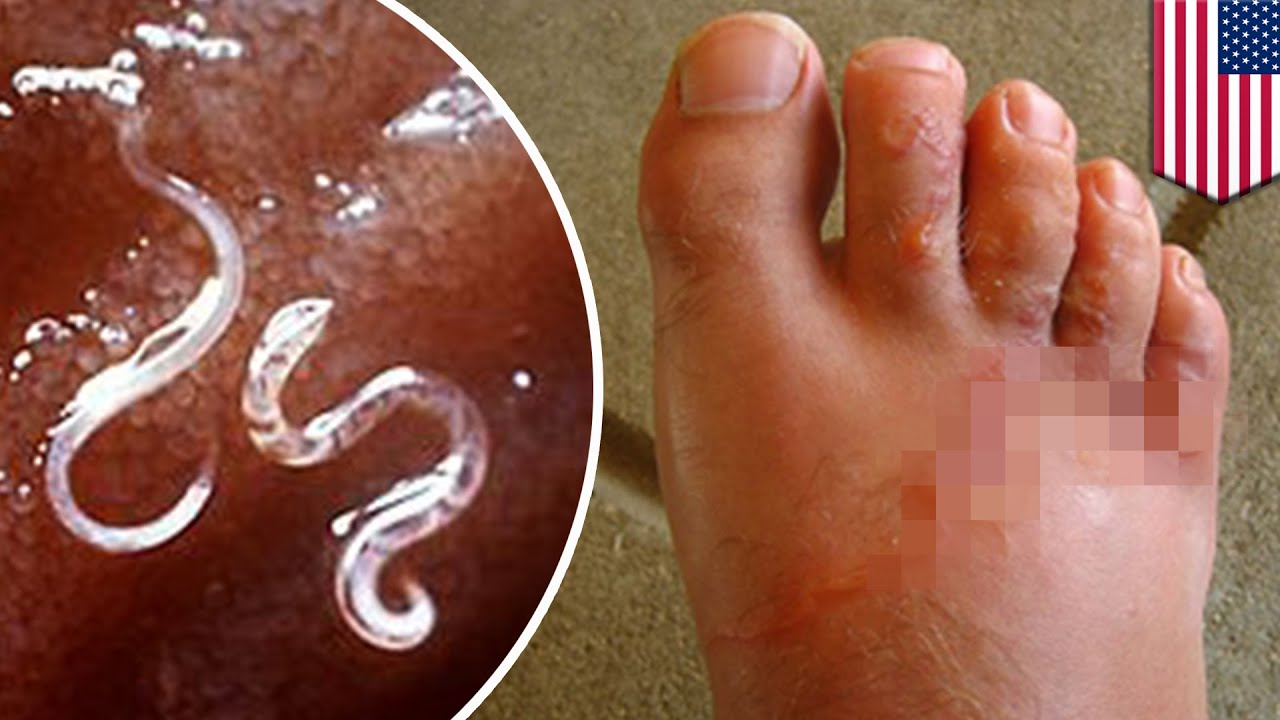 Parasite: Hookworm infection in Alabama county due to extreme poverty,  sewage problems - TomoNews