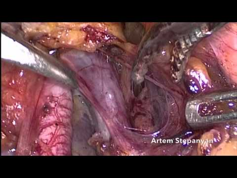 Laparoscopic Type C1 Radical Hysterectomy.