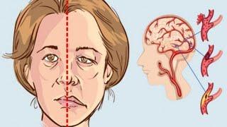 إحذر هذه أعراض بداية جلطة الدماغ أعراض السكتة الدماغية التي يجب أن تعرفها Youtube