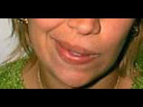 Skin Face of Cherish