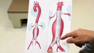 menjelaskan tentang aneurisma aorta abdominal dengan animasi yang menarik..