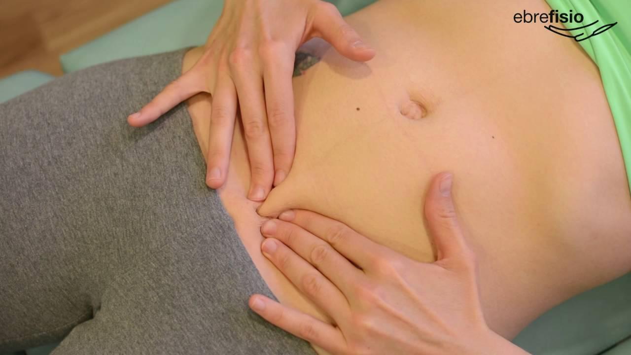 que hacer para bajar el vientre despues de una cesarea