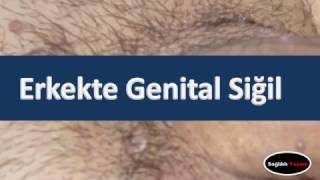 Erkekte Genital Siğil