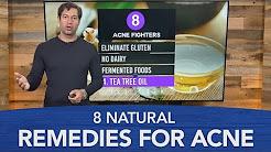 hqdefault - Doctors Home Remedies For Acne