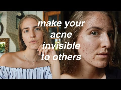 STOP PEOPLE FROM LOOKING AT YOUR ACNE