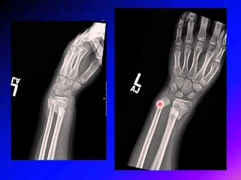Fracture of the wrist in children