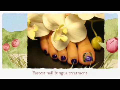 Fungus in nails. Antifungal nail treatment