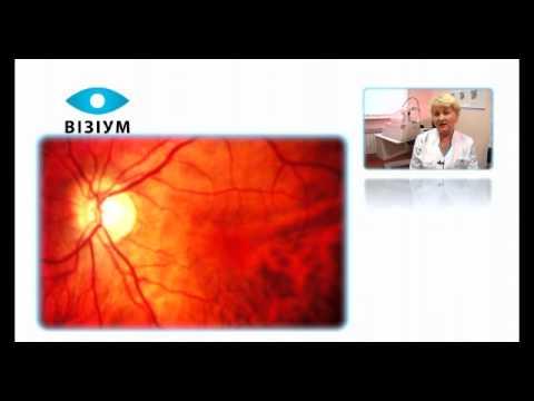 Современные аспекты лечения диабета глаза