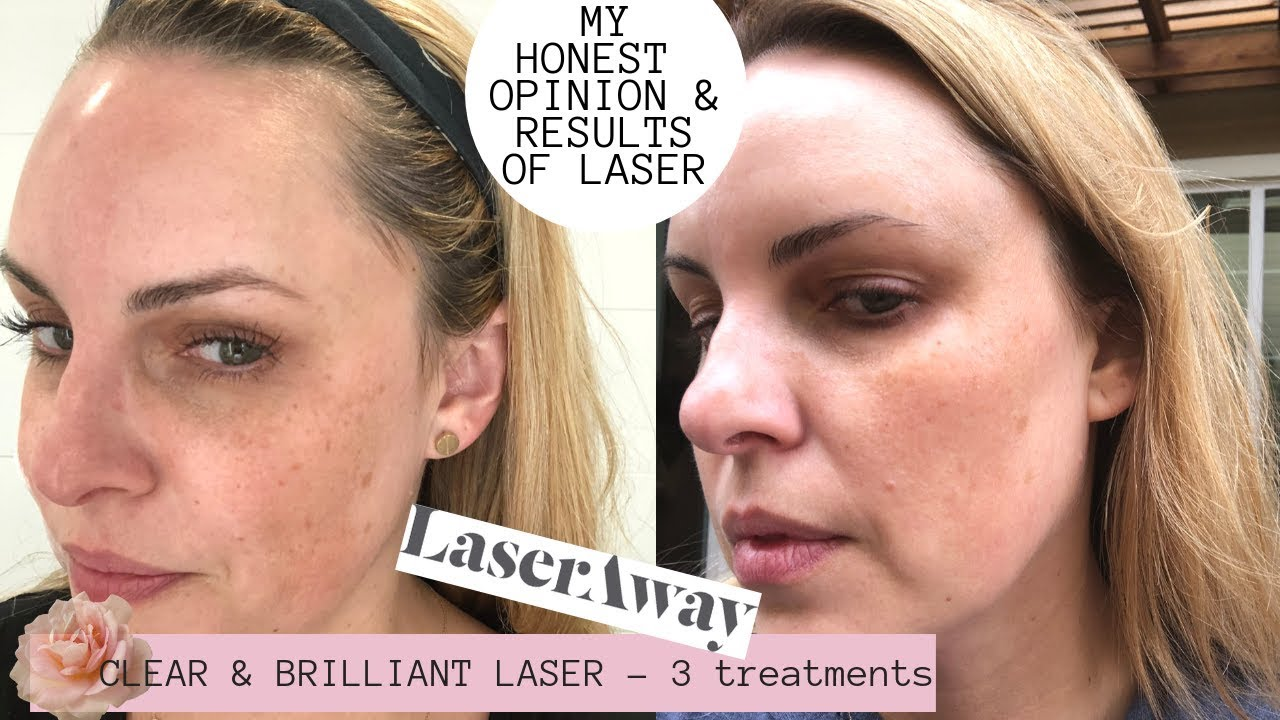 LASERAWAY CLEAR & BRILLIANT LASER RESULTS|| Honest Review PORES, DARK  SPOTS, LINES 🌿🍁