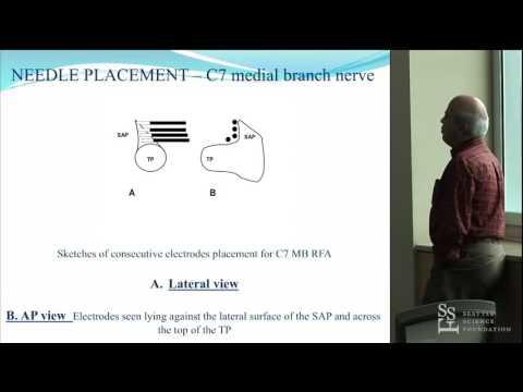 Cervical Radiofrequency Neurotamy Techniques - Mario De Pinto, MD