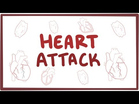 Heart attack (acute myocardial infarction) - causes, symptom
