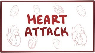 An Osmosis Video: Heart Attack Explained