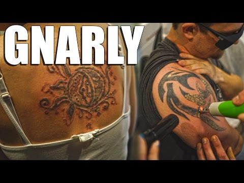 INCREDIBLY PAINFUL | Laser Tattoo Removal