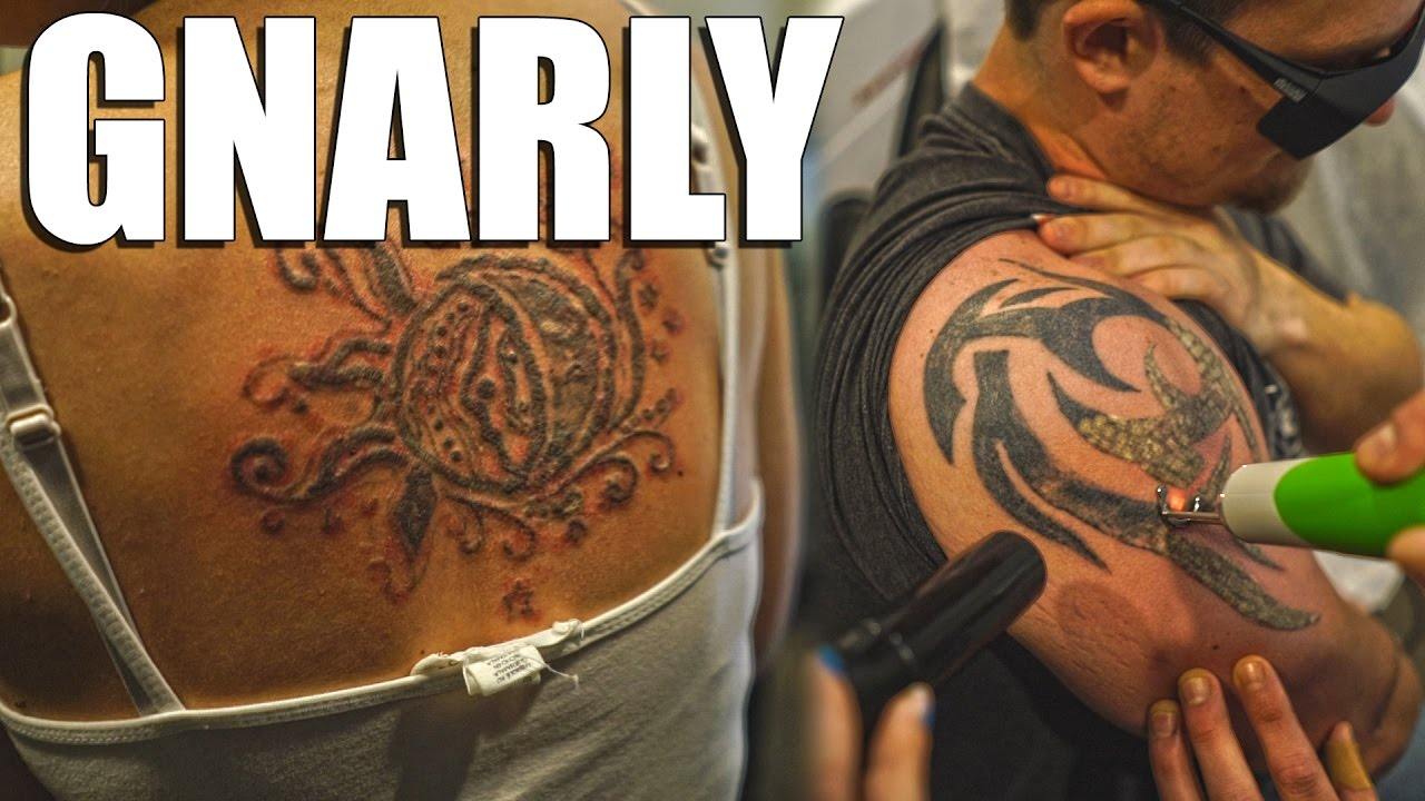 Incredibly painful laser tattoo removal youtube for How to prevent tattoo fading