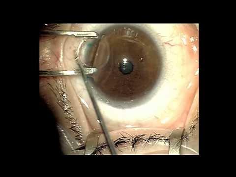 Видео Имплантация миоринга