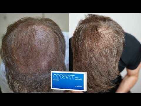 How Many Hairs Can Dutasteride Actually Regrow Youtube